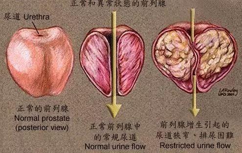 看哪些部位拖健康后腿 男性尿道从前列腺中间穿过,这又是一个不合理