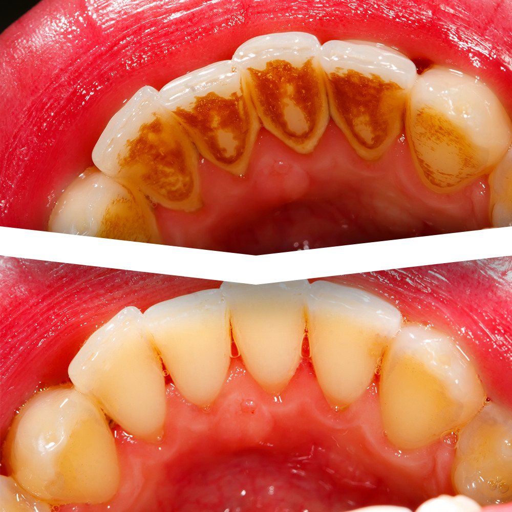 how to keep your permanent retainer clean